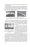 Восстановительная стоматология — фото, картинка — 12